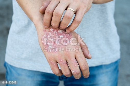 istock Man scratch oneself, dry flaky skin on hand with psoriasis vulgaris, eczema and other skin conditions like fungus, plaque, rash and patches. Autoimmune genetic disease. 849443346