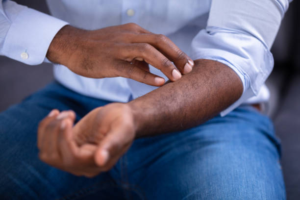 Man Scratching His Hand Close-up Of An African Man Scratching His Hand psoriasis stock pictures, royalty-free photos & images