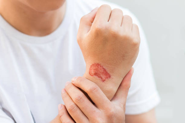 Man show lesion or wound on his arm after accident stock photo