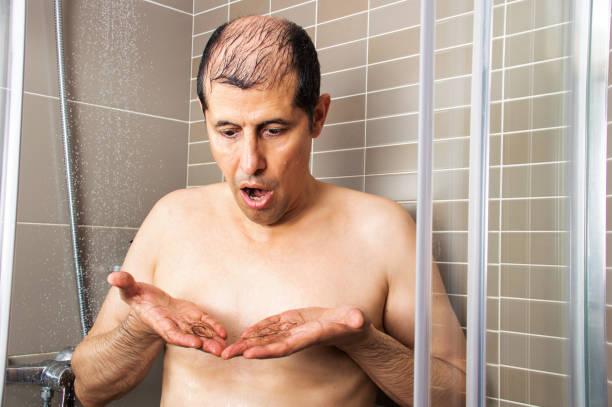Man showering and checking that his hair falls stock photo