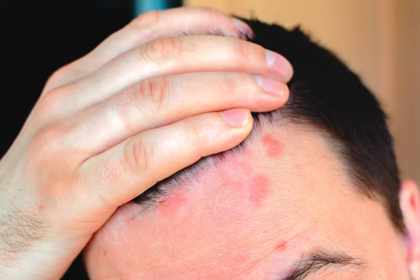Man shows red psoriasis on his forehead Man shows red psoriasis on his forehead human scalp stock pictures, royalty-free photos & images