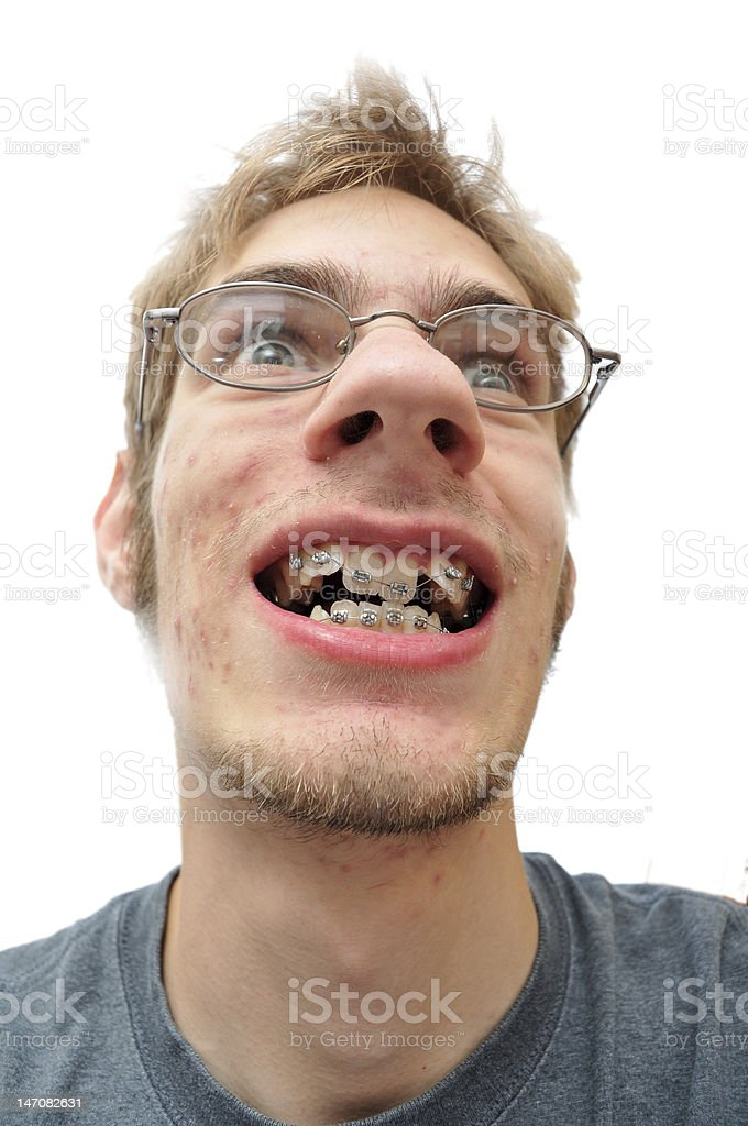 Man smiling showing his braces stock photo