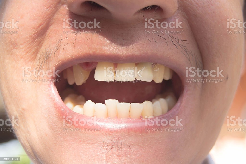 Man smiling with missing tooth photo stock photo