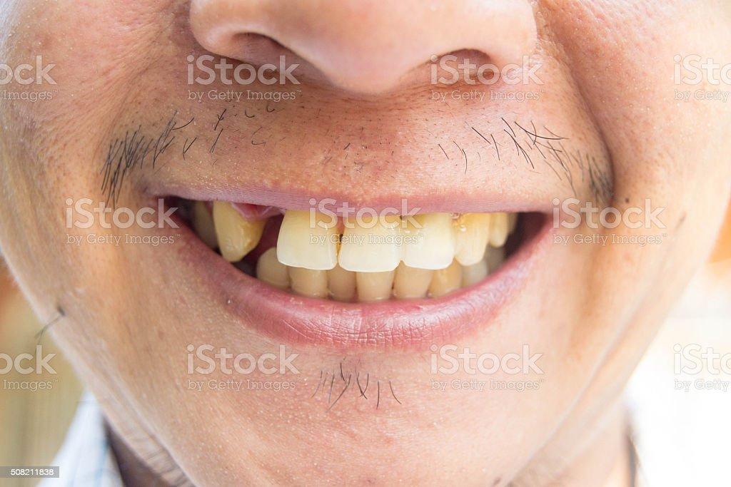 Homme Souriant Avec Dent Manquant Photos Et Plus Dimages De