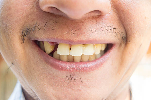 Question Bad teeth and other dating dealbreakers