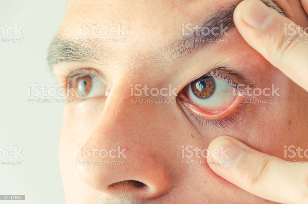 Man spreads his eye with his fingers. stock photo