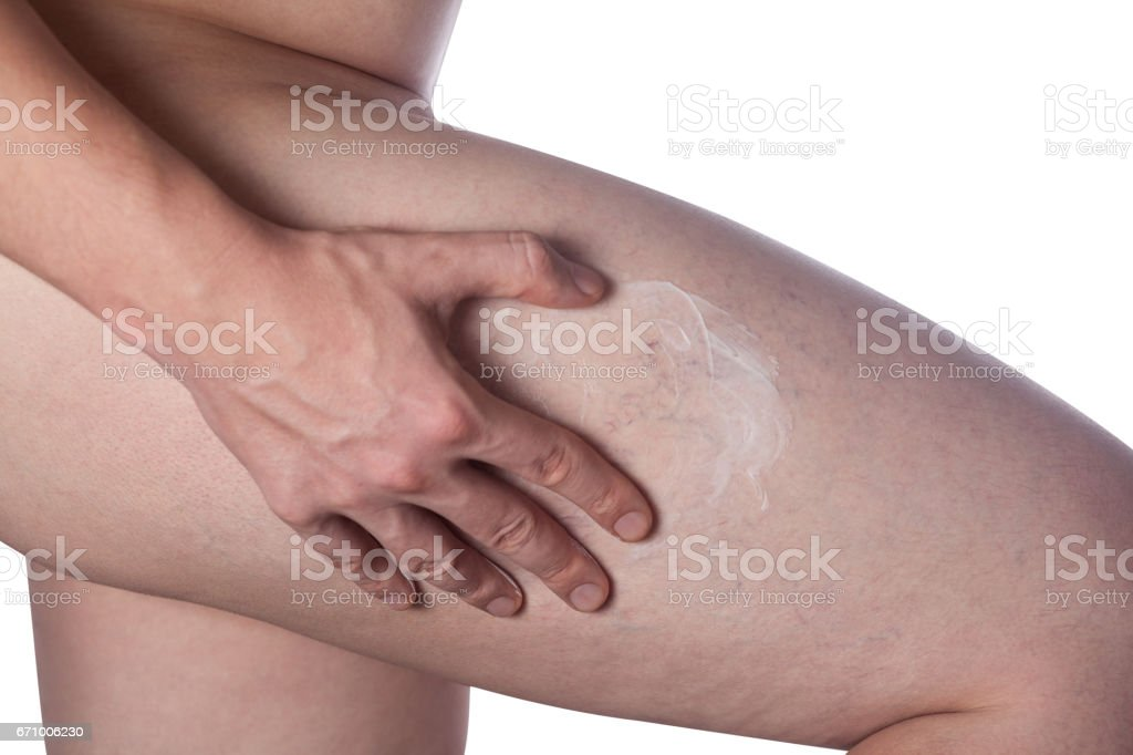 man strikes the ointment on to the place with the dilation of small blood vessels of the skin on the leg stock photo