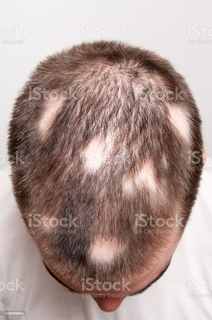Man suffering from alopecia causing bald patches stock photo