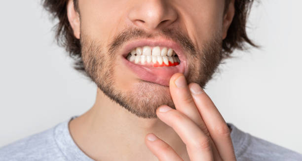 Man suffering from toothache, tooth decay or sensitivity stock photo