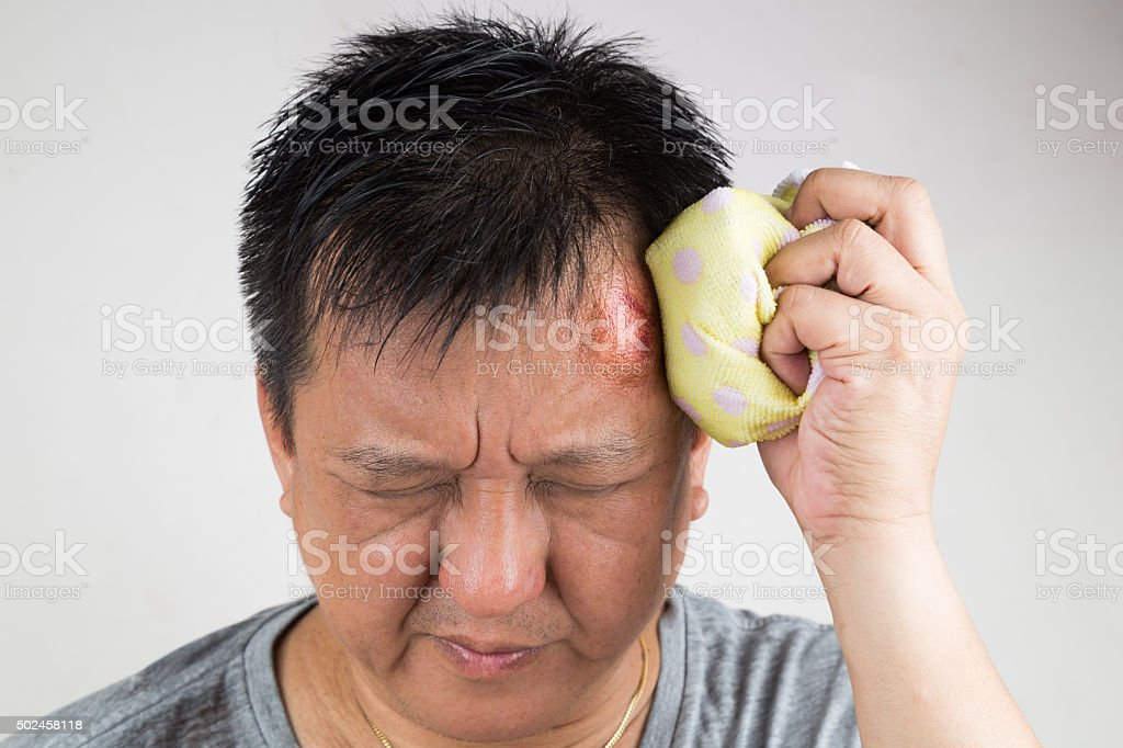 Man treating his injured painful swollen forehead bump with icep stock photo