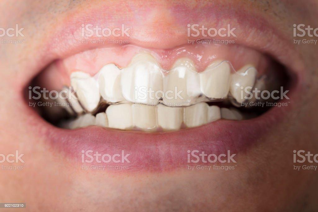 Homem vestindo dentes transparente alinhadores - foto de acervo