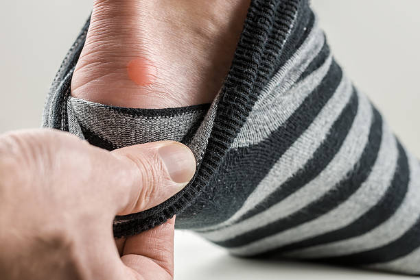 Man with a blister on his heel stock photo