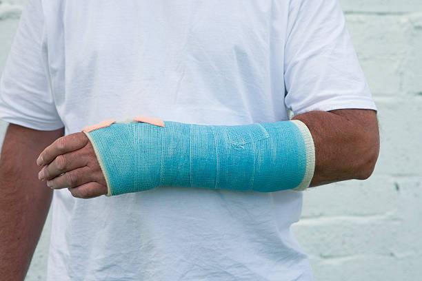 Man With A Broken Wrist stock photo