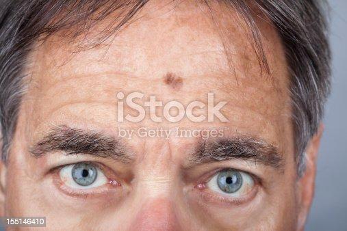 istock Man with a Lentigo Maligna Melanoma series 155146410