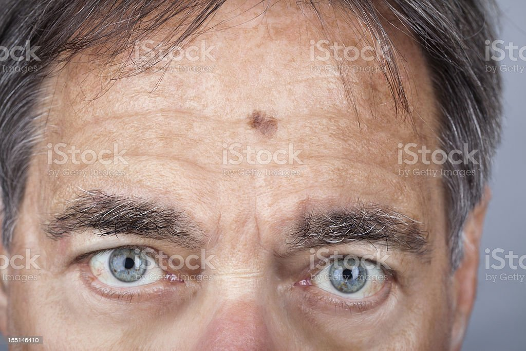 Man with a Lentigo Maligna Melanoma series stock photo