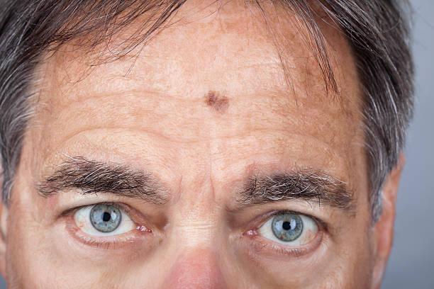 mann mit einem lentigo maligna melanom series - melanom stock-fotos und bilder