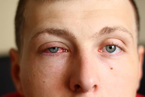Man with a pink eye stock photo
