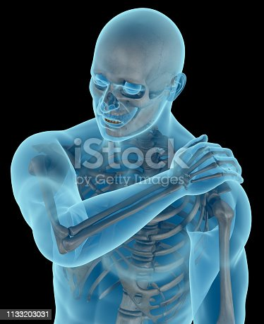istock Man with a shoulder pain 1133203031