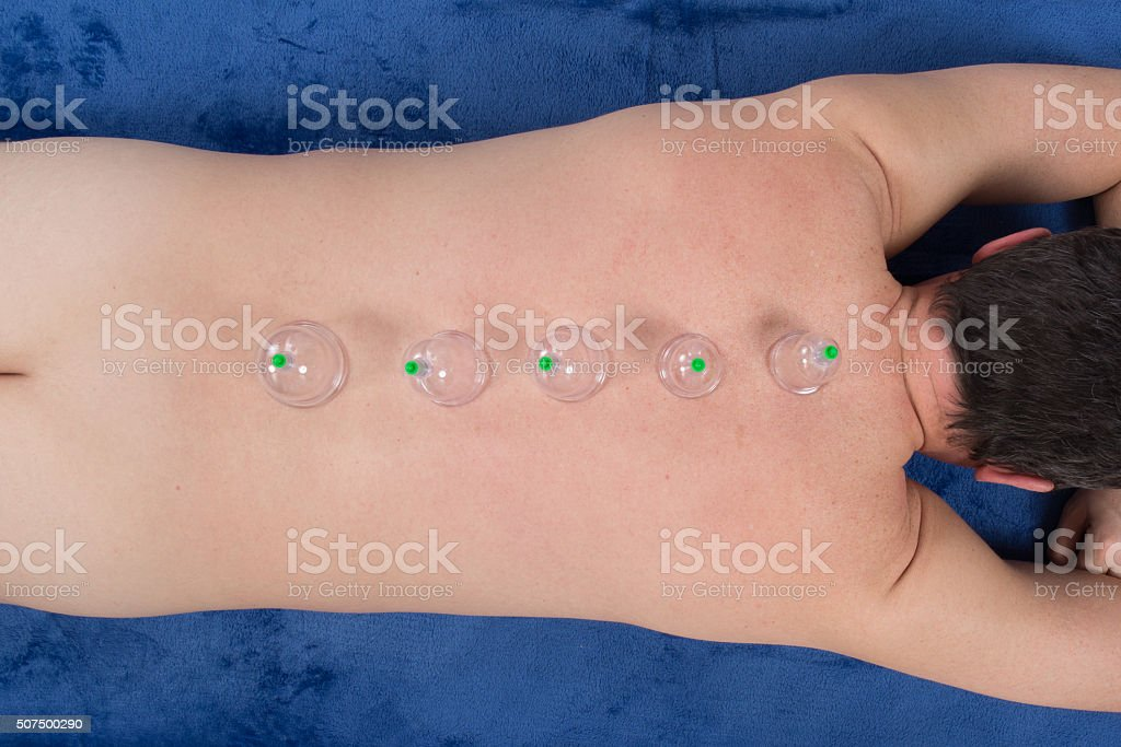 Man with acupuncture cupping treatment on back stock photo