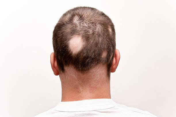 Man with alopecia picture id147710123?b=1&k=6&m=147710123&s=612x612&w=0&h=wkz4ilujfoaxsft47x0kagkdkq60l9bfol1r nnbh1g=