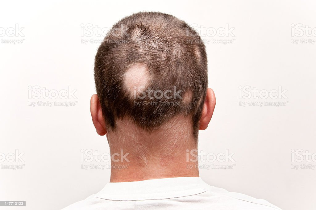 Man with Alopecia stock photo