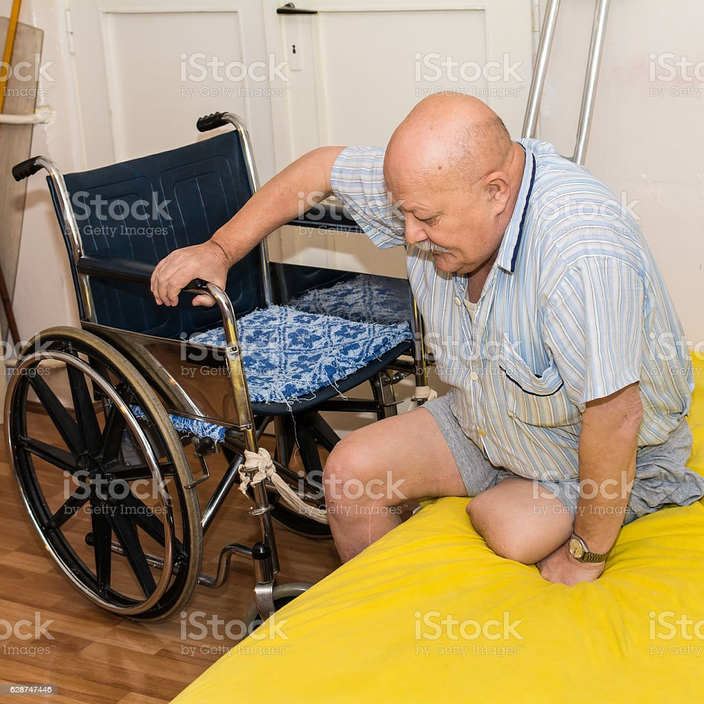 man with an amputated leg and wheelchair stock photo