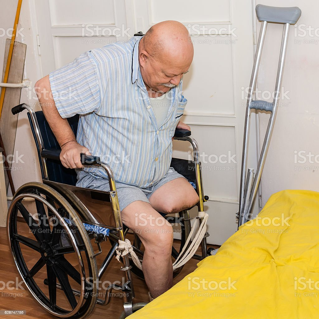 man with an amputated leg and wheelchair – Foto