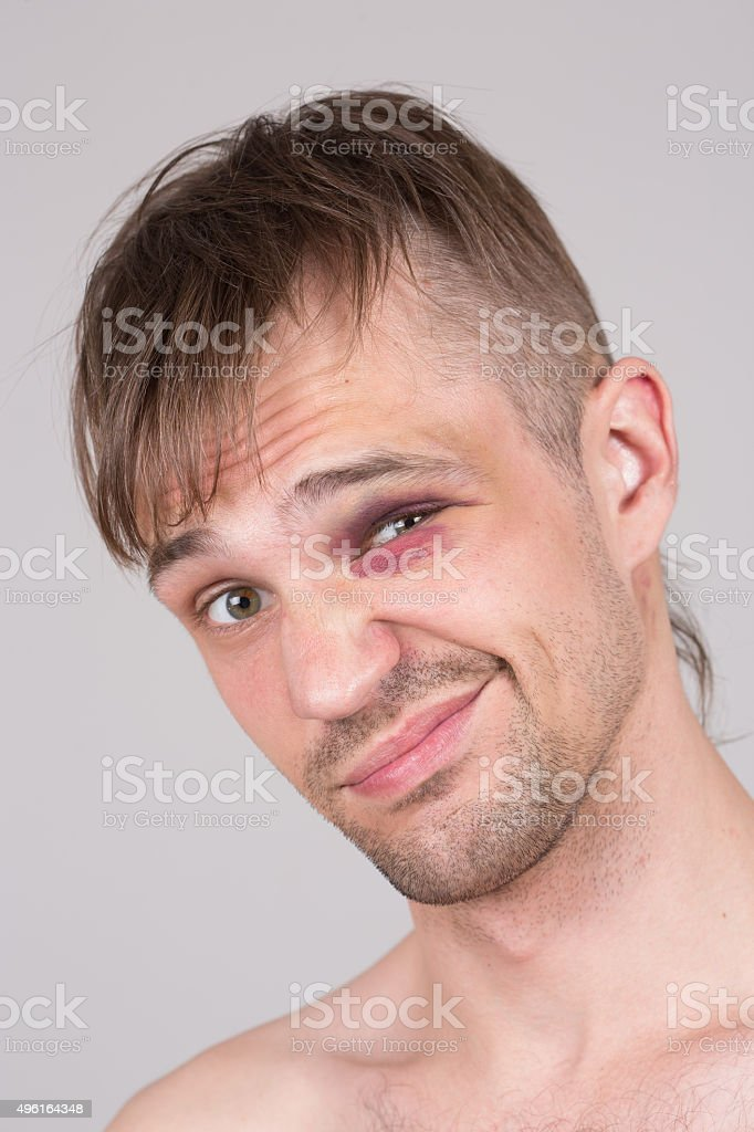 Man with an injured eye. Closeup stock photo
