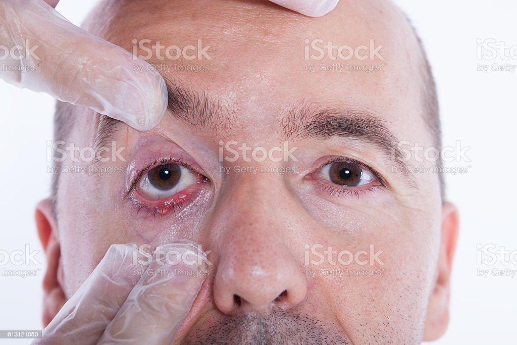 Man with an stye stock photo