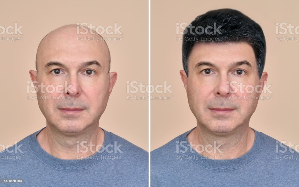 Man with and without hair stock photo