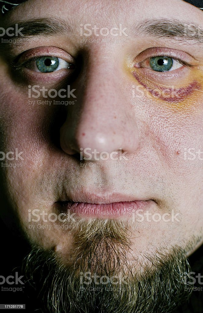 Man with black eye injury stock photo