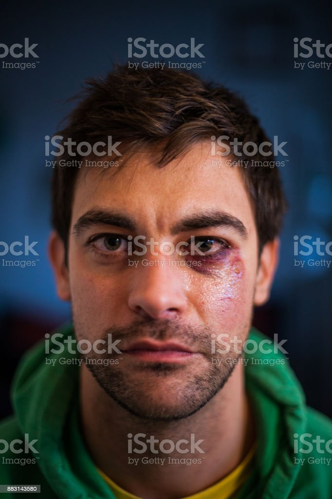 Man with Black Eye Portrait stock photo