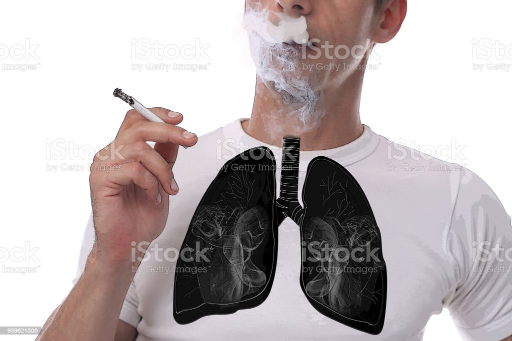 Man with black lungs smoking cigarette isoleted on white bakground stock photo