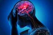 istock Man with brain stroke symptoms 1168179082