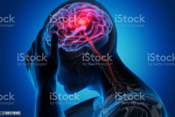 Man with brain stroke symptoms picture id1168179082?b=1&k=6&m=1168179082&s=612x612&h=bomzqsplj7swyfqnrhyxwh5vilpv2cktjrwakiujq1c=