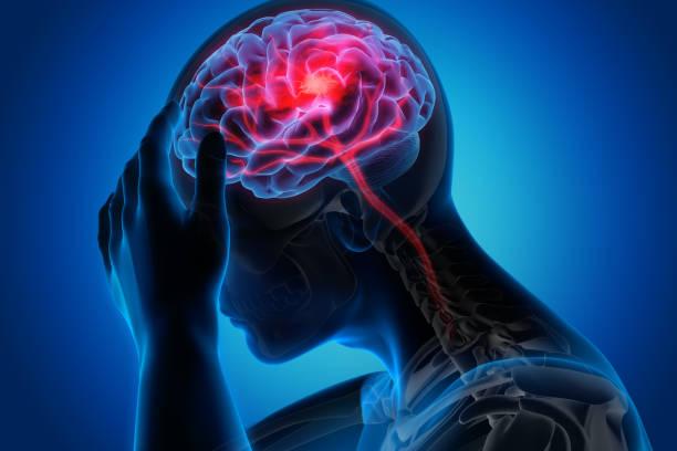 hombre con síntomas de accidente cerebrovascular cerebral - brain fotografías e imágenes de stock