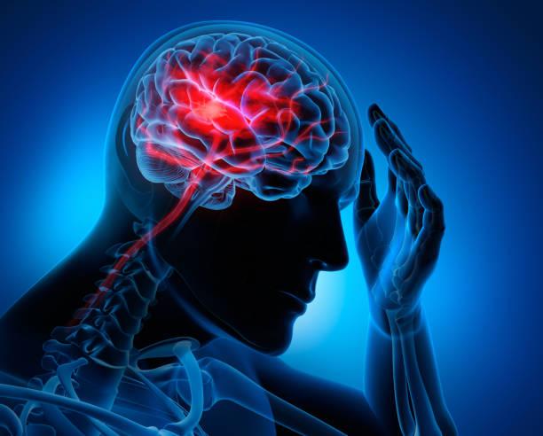 Hombre con síntomas de accidente cerebrovascular cerebral - foto de stock