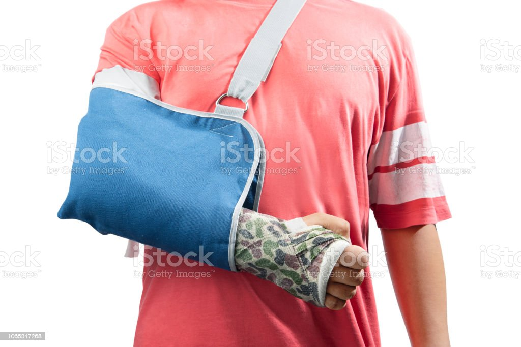 Man with broken bone arm using cast and sling for treatment stock photo