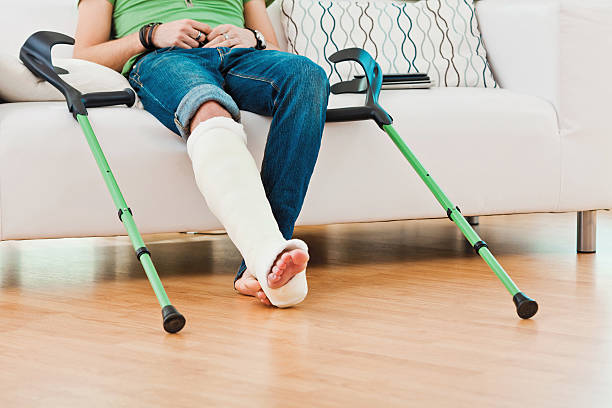 man with broken leg at home - broken leg stock photos and pictures
