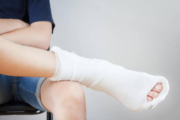 Homme avec une jambe cassée dans un plâtre sur fond blanc - Photo