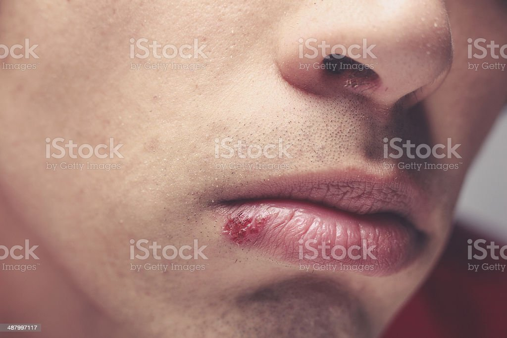 Man with cold sore stock photo