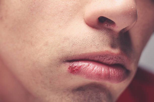 Man with cold sore Young man with a cold sore on his lip herpes stock pictures, royalty-free photos & images