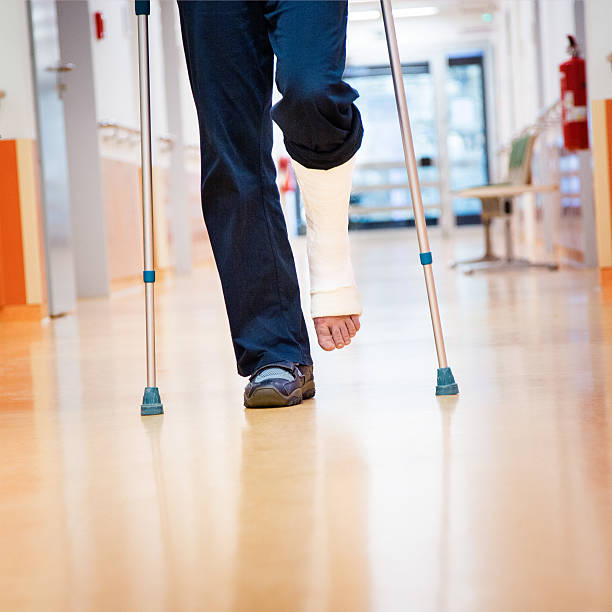 man with cruches and cast at broken leg - broken leg stock photos and pictures