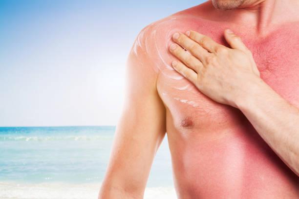 Mann mit geschädigter Haut von der Sonne, Sonnenbrand – Foto