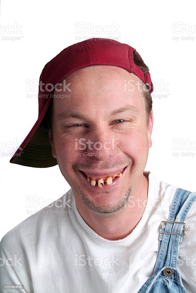Man with Dumb Expression and Bad Teeth in Overalls stock photo