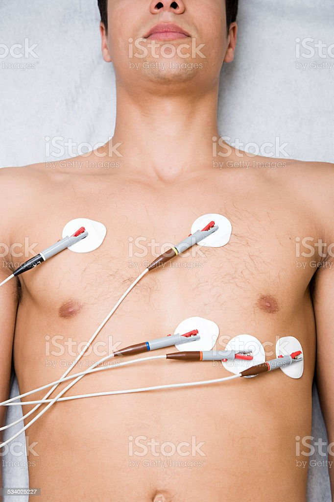 Man with electrodes on chest stock photo
