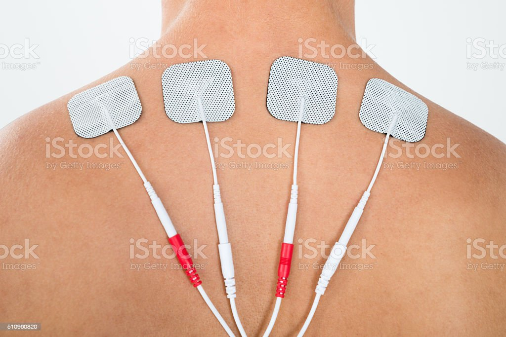 Man With Electrodes On His Back stock photo