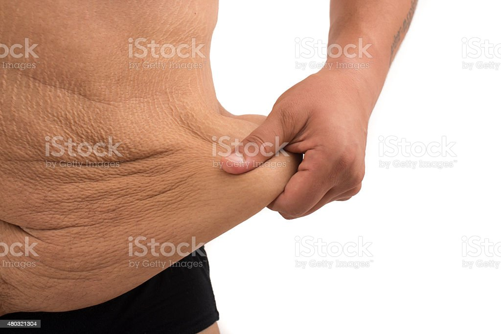 man with fat belly and stretch marks stock photo