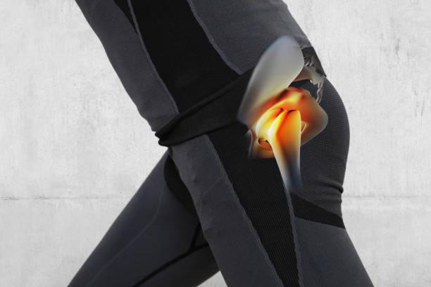 남자 엉덩이 관절 통증입니다. 스포츠 상해 운동 - 엉덩관절 뉴스 사진 이미지