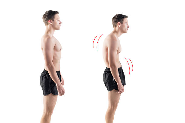 Man with impaired posture position defect scoliosis and ideal bearing stock photo